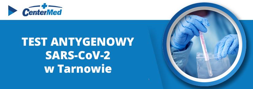 Testy antygenowe Sars-CoV-2 w Tarnowie od 11 kwietnia dostępne również w niedziele.