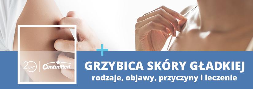 Grzybica skóry gładkiej - rodzaje, objawy, przyczyny i leczenie