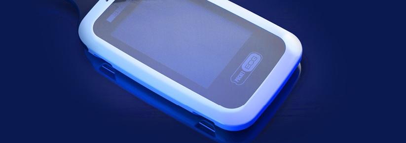 Diagnostyka serca na odległość - mobileHolter